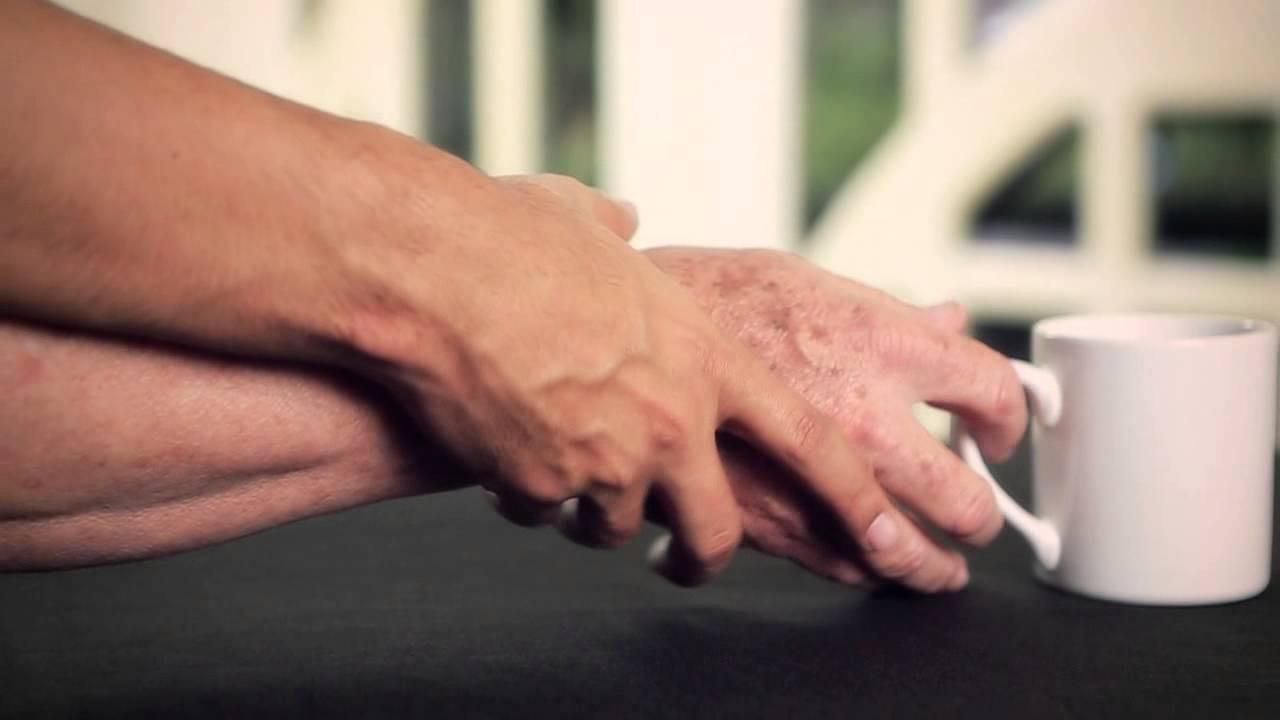 Parkinson - Formula Medica.jpg