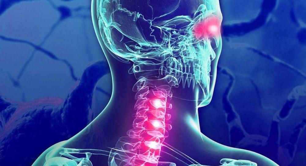 Esclerosis Multiple EM - Formula Medica