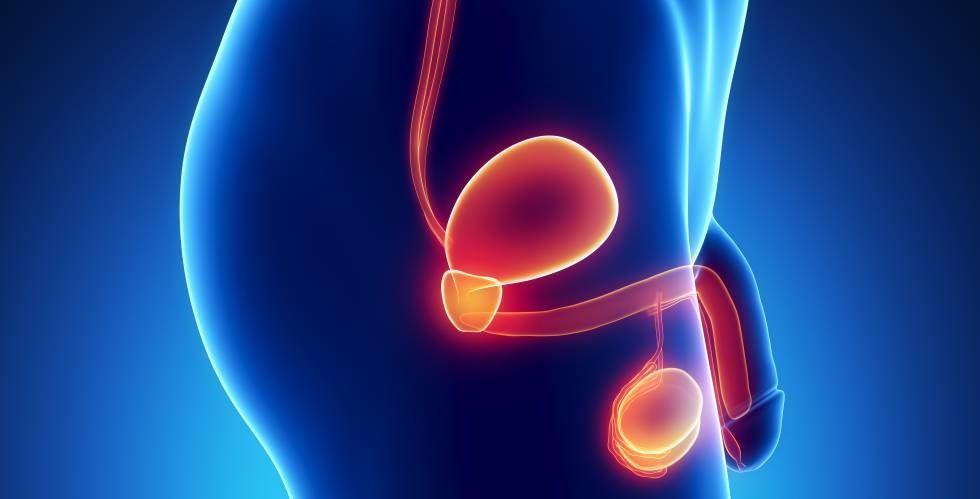 Cancer de prostata - Formula Medica