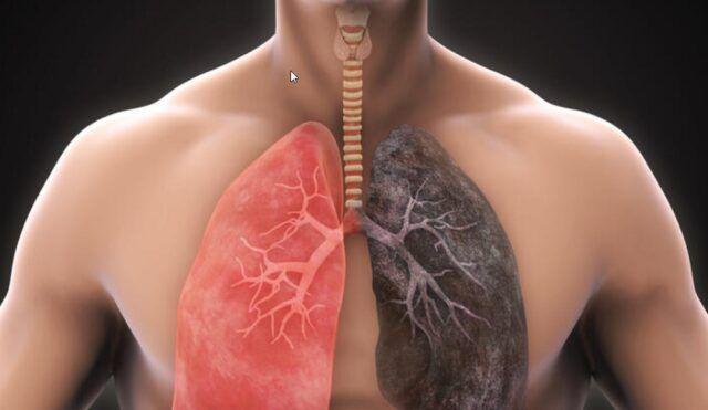 Enfermedad pulmonar - Fórmula Médica