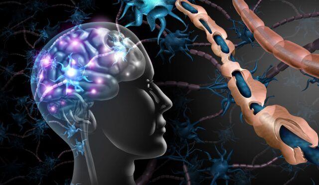 Esclerosis Múltiple - Fórmula Médica